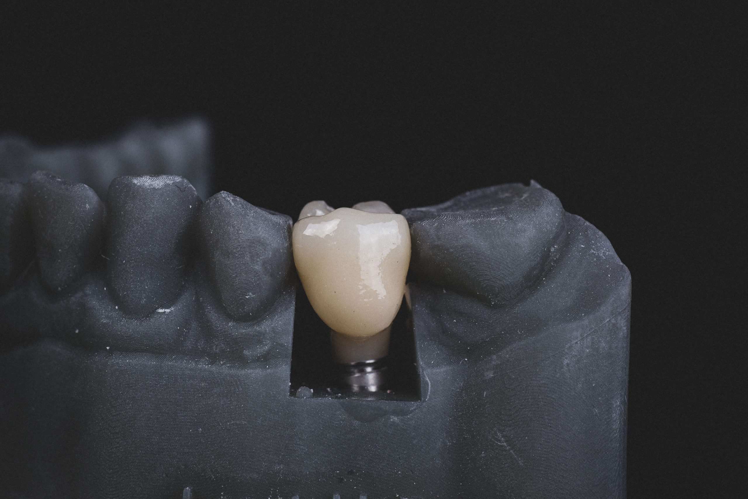 Ile kosztują implanty całej szczęki?